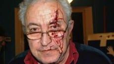 Mario Piccolino subito dopo essere stato colpito dnel 2009