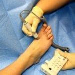 Aprilia, screening gratuiti contro il piede diabetico
